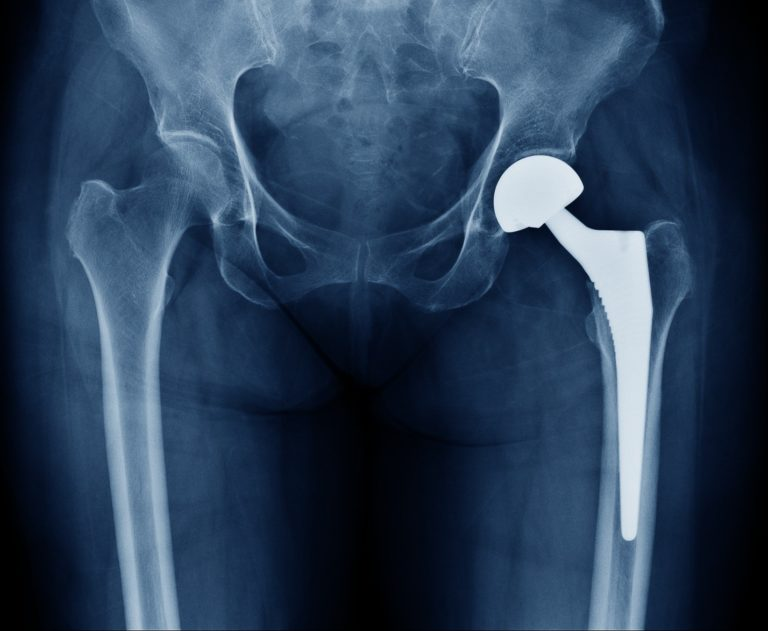 Hip Replacement Surgery >> Failed Joint Replacement Surgery Could You Have A Claim